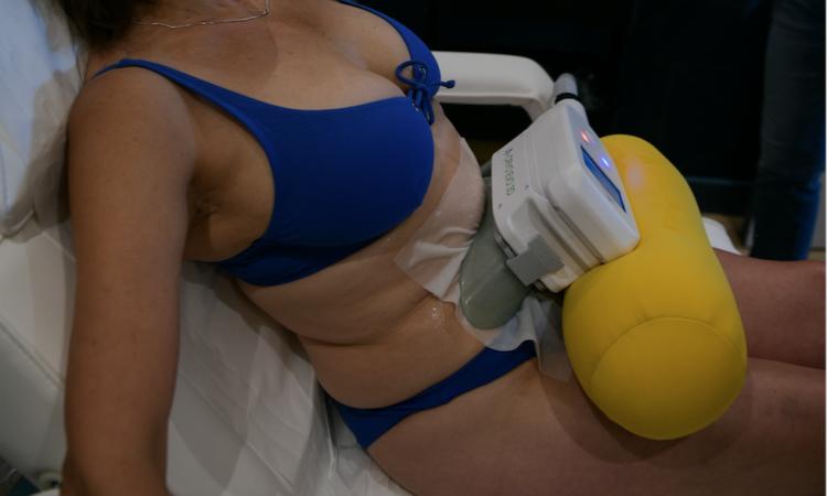 seance de cryolipolyse lyon centre cryoadavance séance bas du ventre