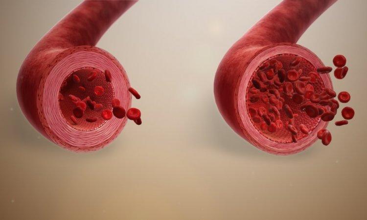 les effets de la cryotherapie corps entier sur les contractures musculaires à Lyon Annecy et Bourgoin Jallieu